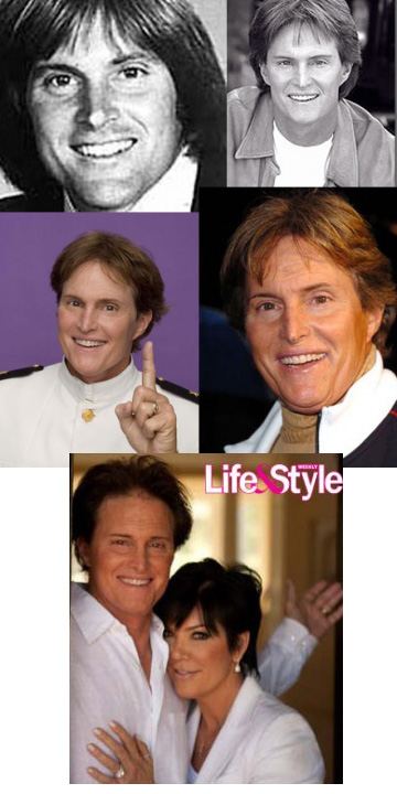 Bruce_Jenner_plastic_surgery_journey