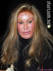 Jocelyn Wildenstein 2009