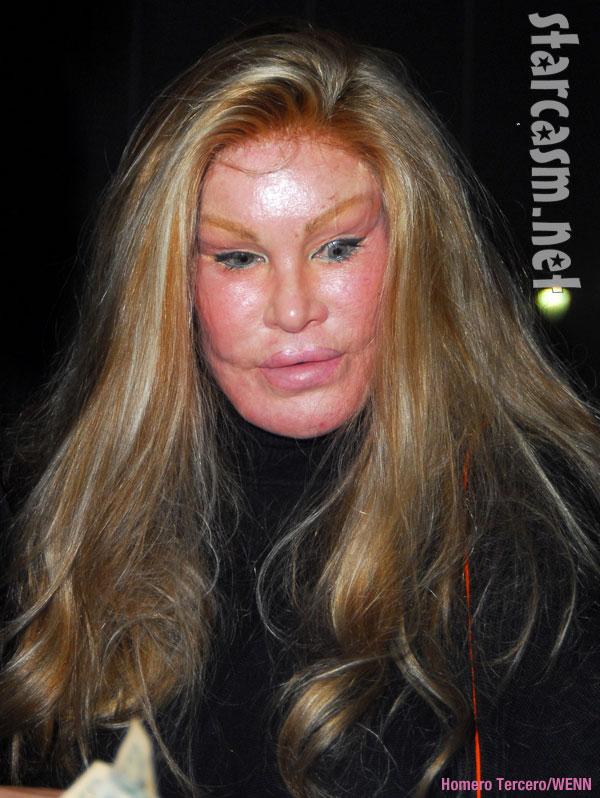 A long dress stein plastic surgery