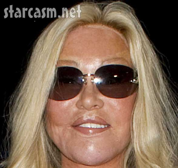 discussion the jocelyn wildenstein story classic atrl