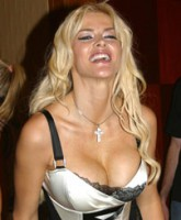 Anna Nicole Smith in a mini skirt and fishnet stockings showing off the breast implants that lead to her severe back pain