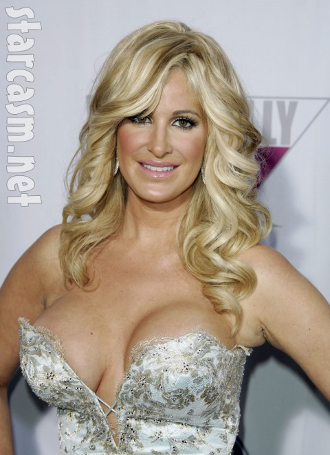 Why did kim Zolciak lose her hair?