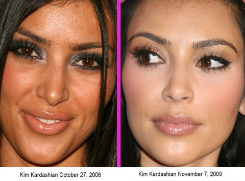 CLICK HERE to see plastic surgery before and after photos of Megan Fox!