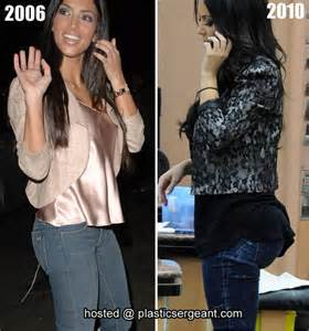 Kourtney Kardashian 2006 Before And After
