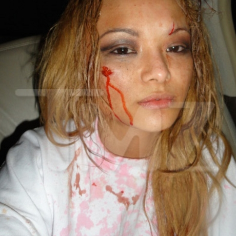 Tila Tequila injured at the Gathering of the Juggalos