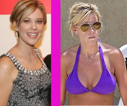 Kate Gosselin Plastic Surgery Before