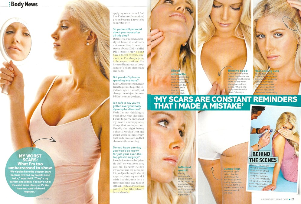 heidi montag surgery scars. Surgery ruined my career and