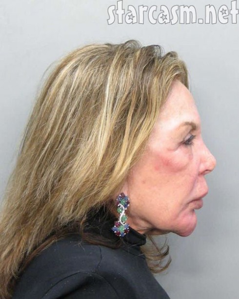 Real Housewives of Miami Elsa Patton profile mug shot