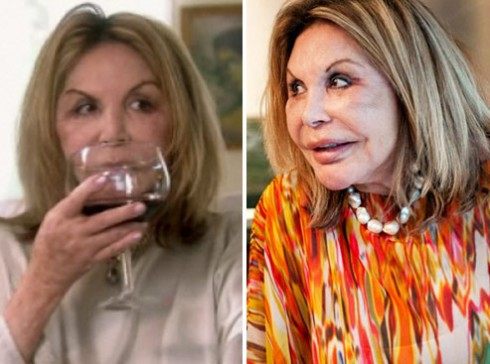 Elsa Patton after plastic surgery (image hosted by starcasm.net)