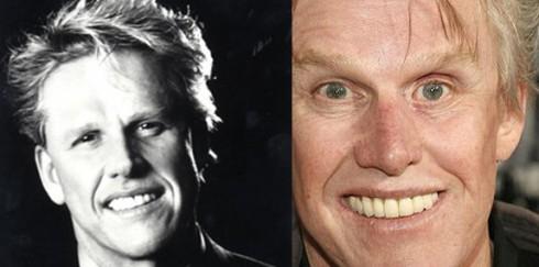 Gary Busey before and after dental veneers photosGary Busey Motorcycle Accident Before And After