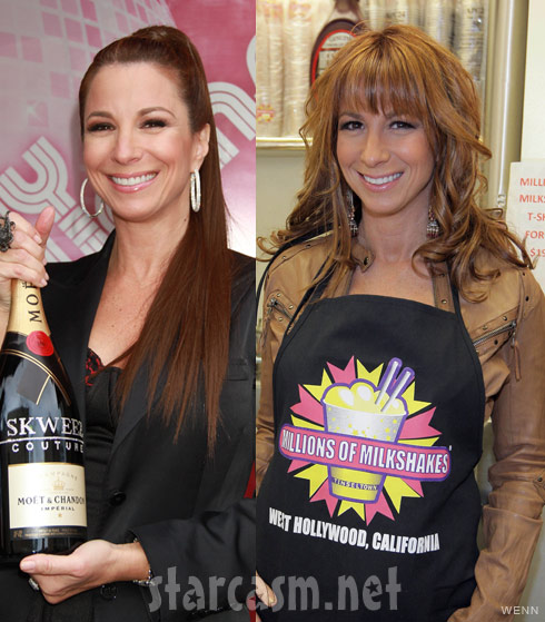 RHONYC Jill Zarin side by side plastic surgery photos