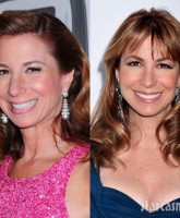 Jill Zarin liquid eyebrow lift