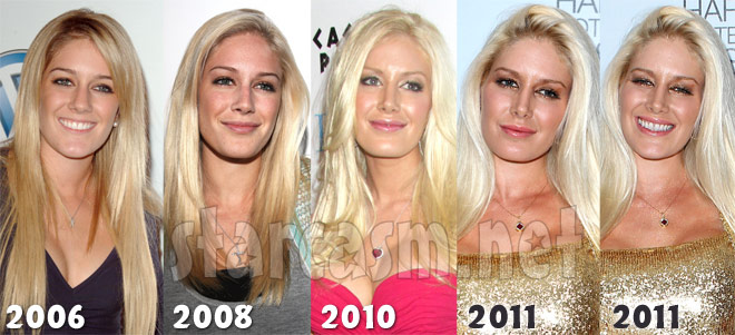 BEfore and after plastic surgery photos of Heidi Montag in 2006 2008 2010 and 2011