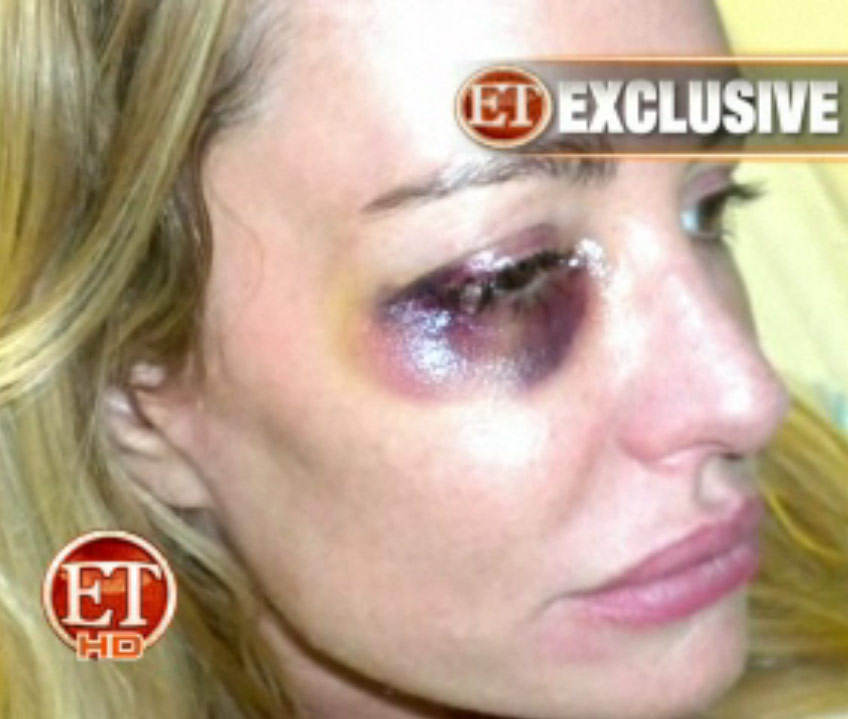 RHOBH Armstrong black eye