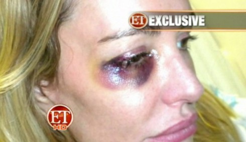 Beverly Hills Housewife Taylor Armstrong violent photo