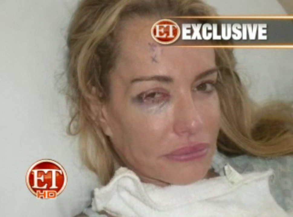Beverly Hills housewife Taylor Armstrong beaten