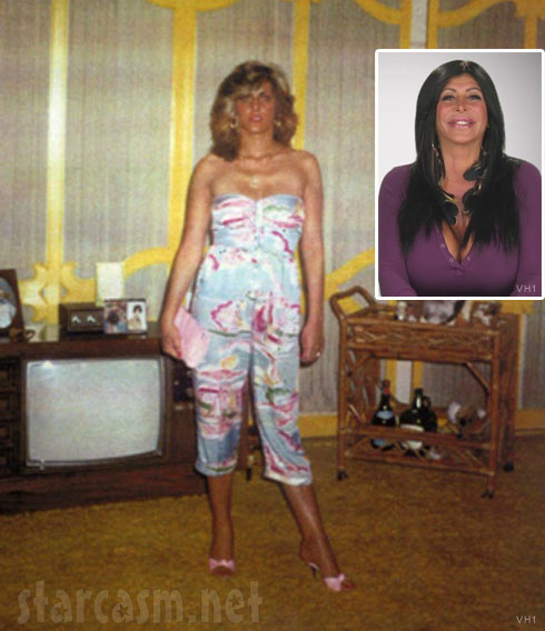 Big Ang before breast implants and plastic surgery