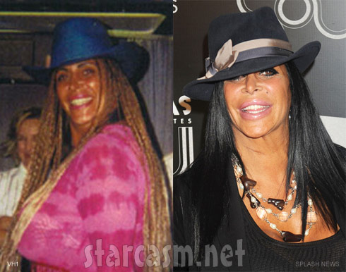 Big Ang plastic surgery photos