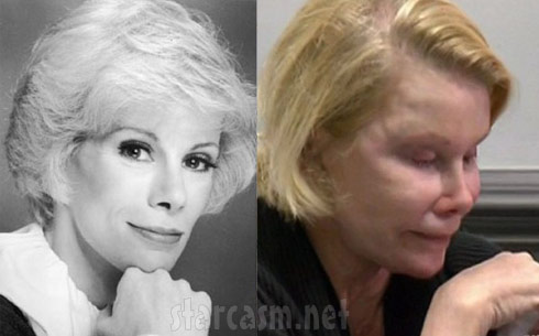 Joan Rivers before and after plastic surgery photo