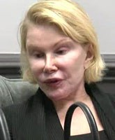 What did Joan Rivers look like before plastic surgery?