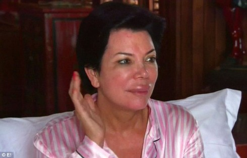 Kris Jenner lip injections plastic surgery