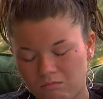 Dermal Face Piercing