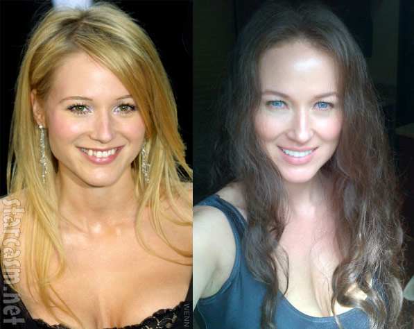 Jewel's crooked teeth before and after