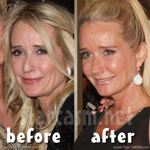 Kim Richards before and after nose job photos