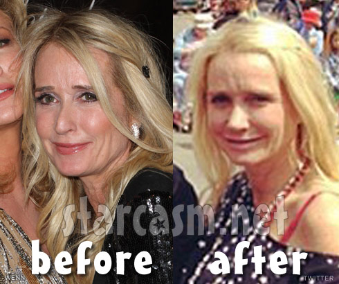 Kim Richards nose job before and after photos