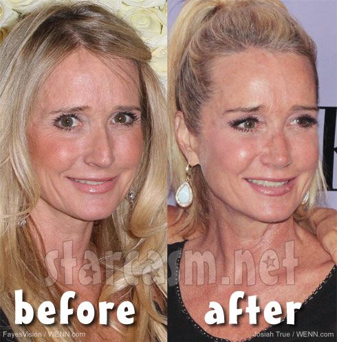 Side-by-side before-and-after Kim Richards nose job plastic surgery photos