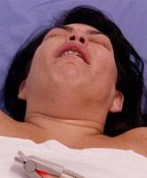 Renee-graziano_TN_Surgery