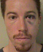 Shaun_White_mug_shot_tn