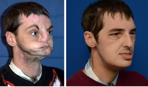 Richard Lee Noriss face transplant amazing