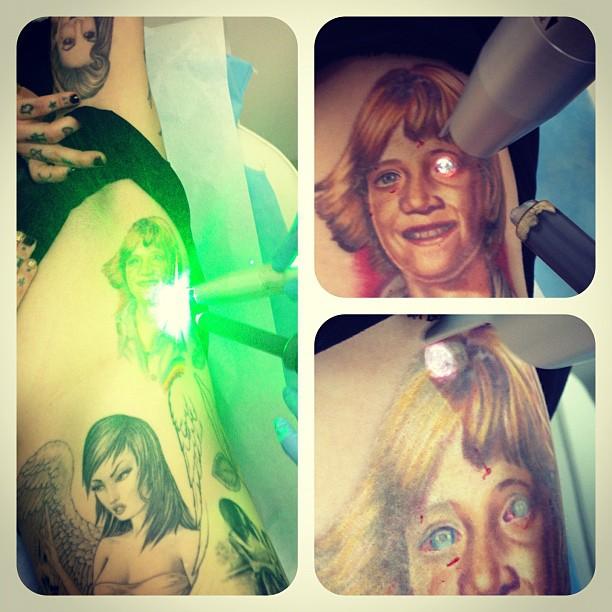photos kat von d has 5th grade jesse james tattoo removed