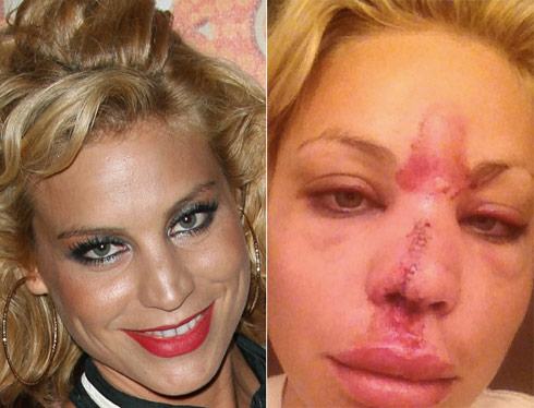 Lisa D'Amato before and after