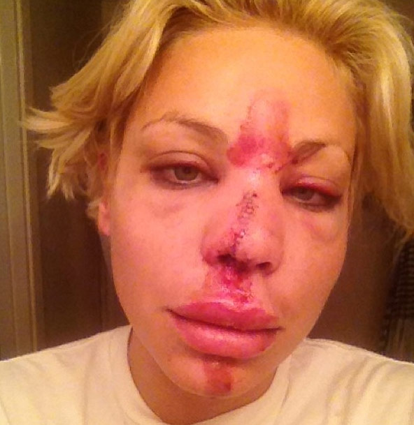 Model Lisa D'Amato face injury