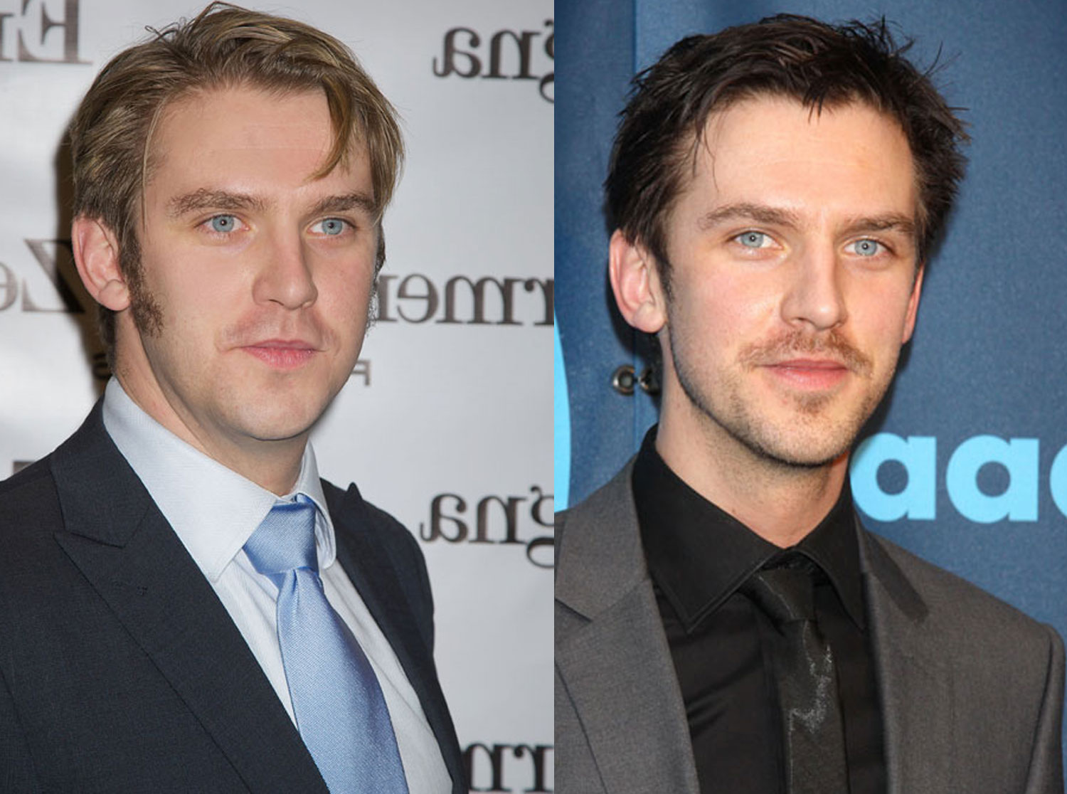Downton Abbey's Dan Stevens before and after weight loss ...
