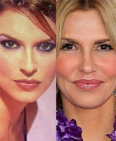 Brandi Glanville Before And After Surgery Stassi
