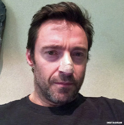 Wolverine star Hugh Jackman posted the above photo of his bandaged-up