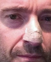 Hugh-Jackman_Nose_TN