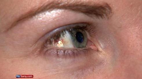 Twinkle in Eye - Platinum Implant