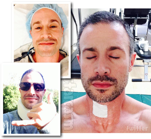 Fred Prinze Jr Spinal Surgery Photos
