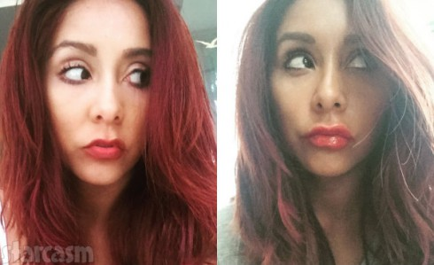 Before and After Snooki Lip Injections
