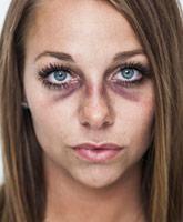 Brooke_Beaton_domestic_abuse_photo_tn