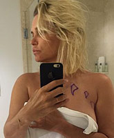Yolanda_Foster_leaking_breast_implants_tn