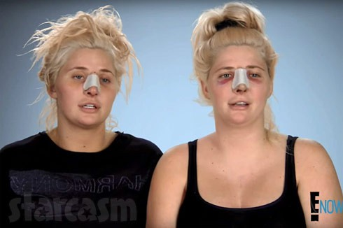 Botched Playboy Shannon twins Katrina and Karissa