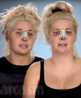 Botched_Shannon_twins_tn