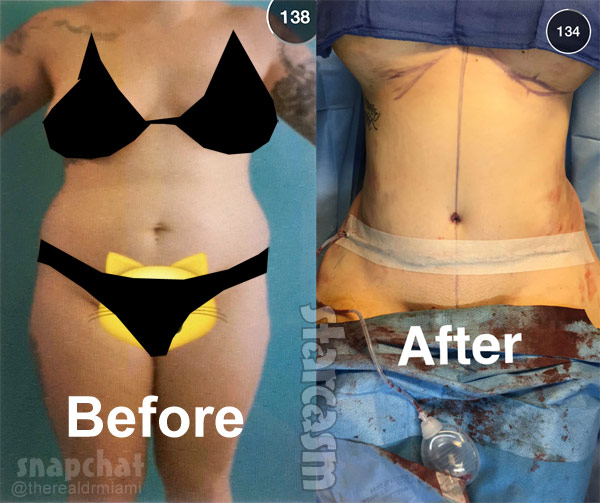 Kailyn Lowry plastic surgery before and after tummy tuck