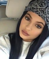 Kylie Jenner lip injections 2