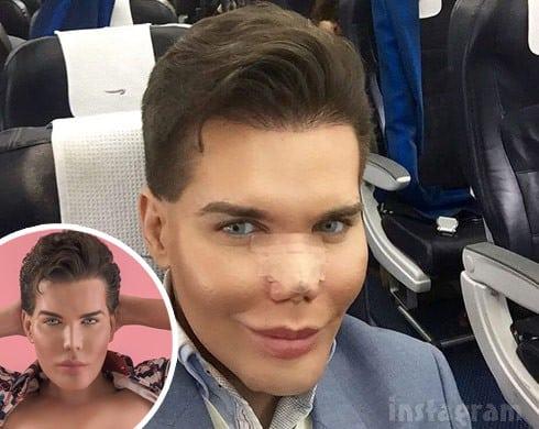 Botched Human Ken Doll Rodrigo Alves nose